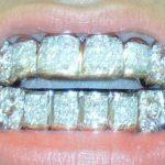 грилзы на зубы, их виды, описание