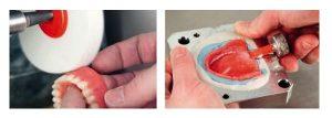 как изготавливают зубные протезы Акри фри