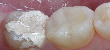 мышьяк в стоматологии: что это такое, как хранить, есть ли его заменитель