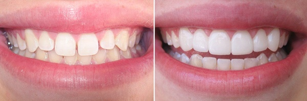 """фото """"до и после"""" процедуры наращивания зубов, в том числе и клыков"""