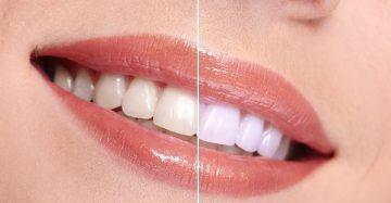 отзывы об отбеливании зубов содой в домашних условиях, фото до и после