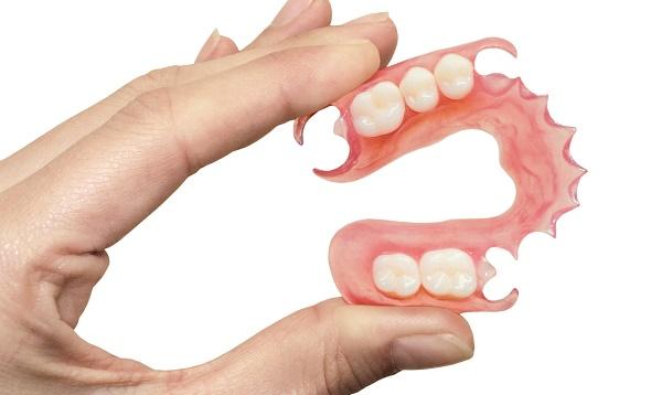 основные достоинства нейлоновых зубных протезов