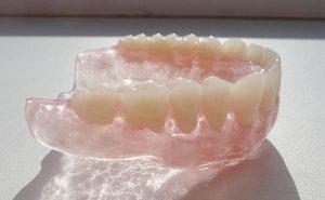 какими преимуществами обладают зубные протезы Акри фри