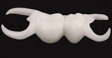 """надо ли снимать зубной протез """"бабочка"""", фото """"до"""" и """"после"""""""