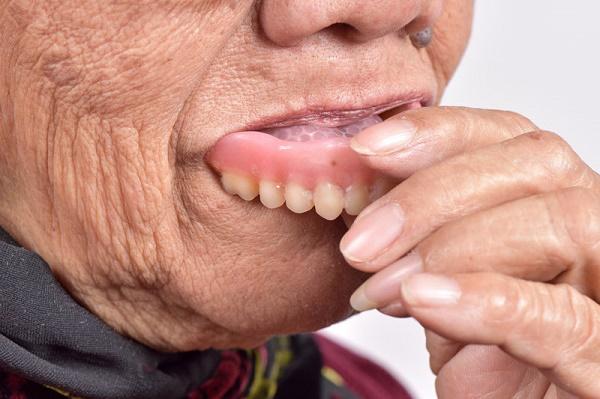 если возникли трудности со снятием зубного протеза