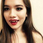 достоинства и недостатки процедуры наращивания зубов