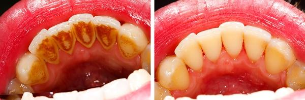 чистка зубного камня ультразвуком, фото до и после проведения процедуры
