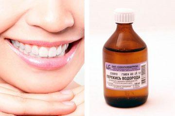 отзывы пациентов об отбеливании зубов перекисью водорода