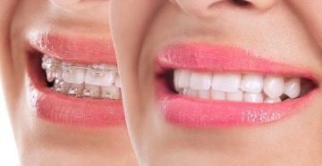 разновидности брекетов для взрослых и детей, фото до и после лечения