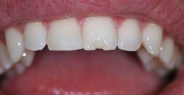 что делать если крошатся зубы у взрослого или подростка
