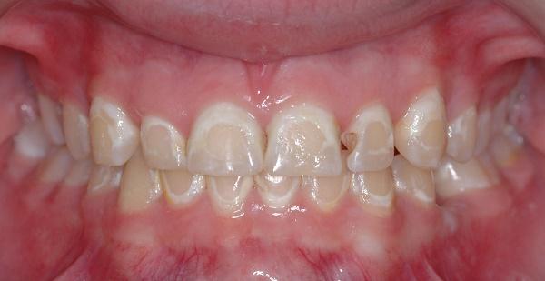 последствия отбеливания зубов перекисью водорода