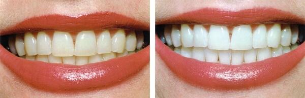 фото до и после проведения отбеливания эмали зубов