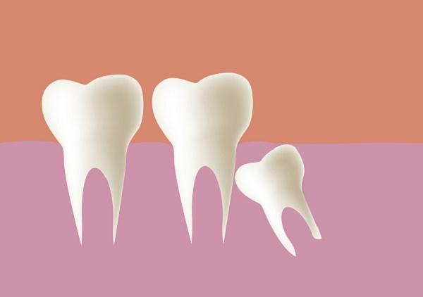 особенности диагностики ретинированного зуба