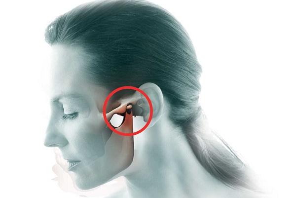 симптомы артрита нижнечелюстного сустава