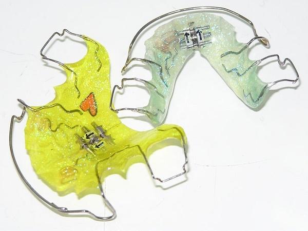как выглядят пластины для выравнивания зубов, сколько стоят и как правильно одеть