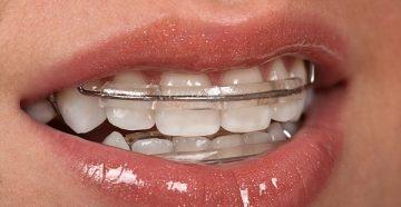 описание и показания к использованию пластин для выравнивания зубов