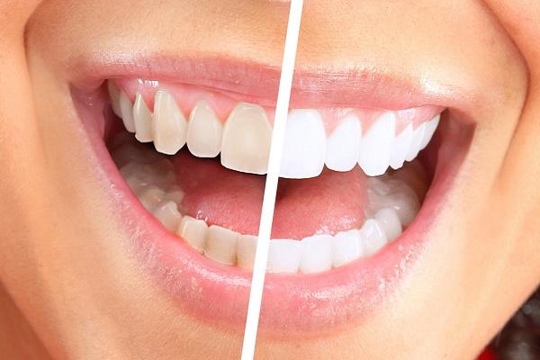 фото до и после проведения процедуры по лазерному отбеливанию зубов