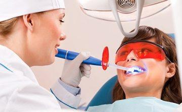 лазерное отбеливание зубов, отзывы стоматологов и пациентов о процедуре