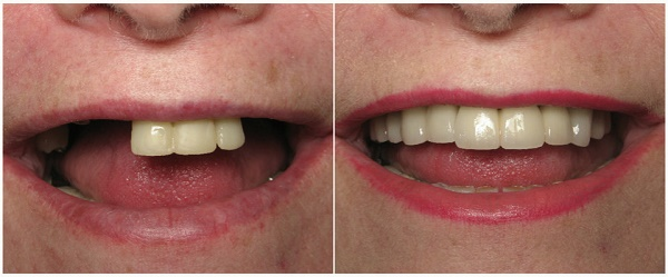 существующие показания к проведению имплантации и протезированию зубов