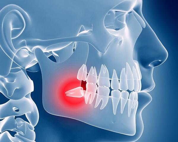 почему возникают ретинированные зубы на нижней челюсти