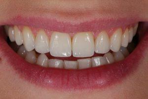 какие существуют противопоказания к использованию ультразвуковых зубных щеток