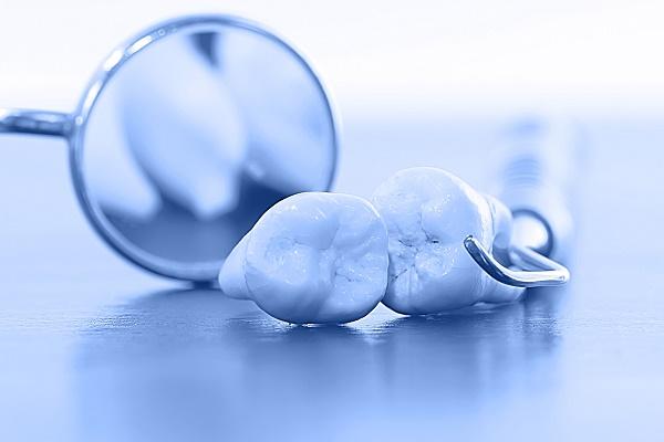 почему может развиться альвеолит после удаления зуба мудрости