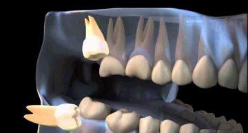 в каких случаях требуется удаление ретинированного дистопированного зуба мудрости