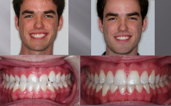 как меняется ли лицо после установки брекетов