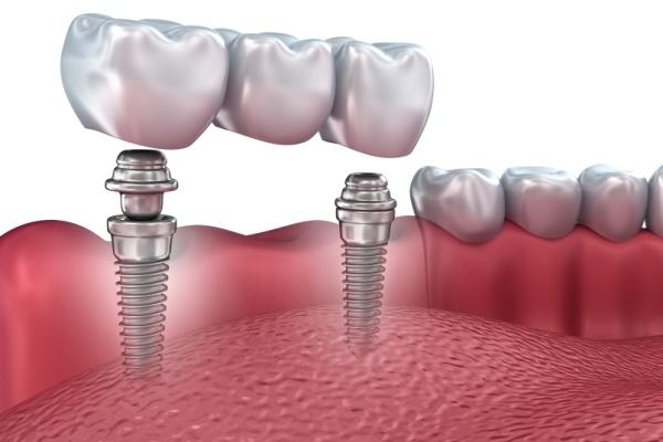 Имплантаты зубов — особенности и преимущества