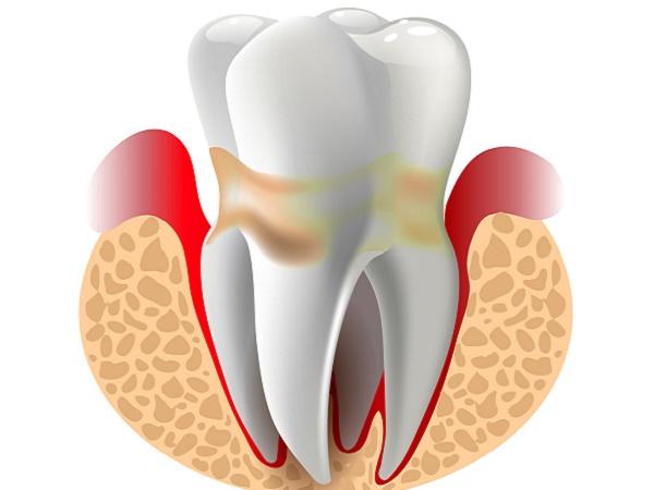 почему десны вокруг зуба могут быть воспалены