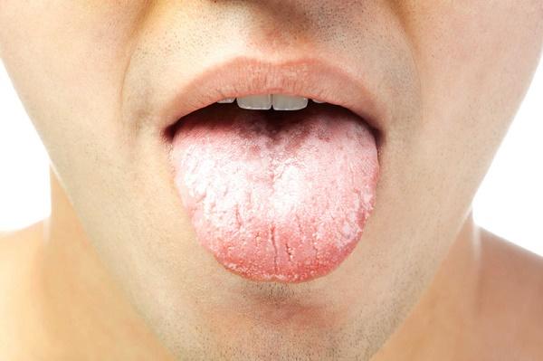 развитие молочницы на языке