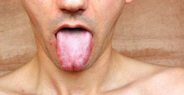 заразен ли стоматит, как протекает заболевание