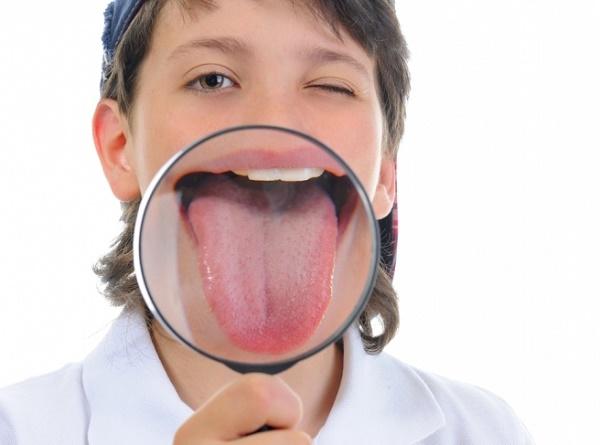белый налет на языке у детей, когда это является нормой