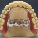 показания к установке бюгельных протезов на верхнюю челюсть