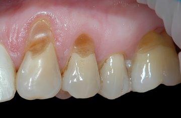 какие существуют особенности лечения клиновидного дефекта зубов