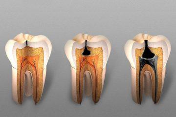 пульпит зуба: что это такое, описание симптомов, можно ли лечить его в домашних условиях, фото
