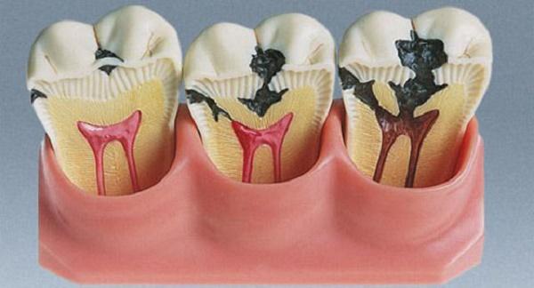 формы пульпита, может ли он развиться на молочных зубах