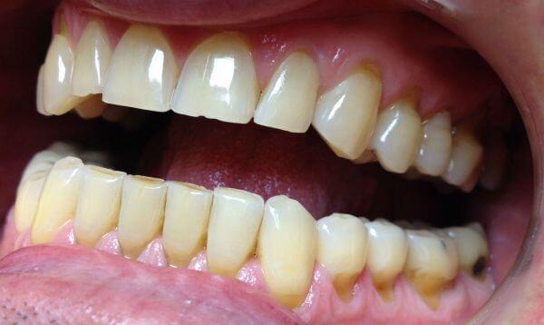 фото клиновидного дефекта зубов, как вовремя распознать заболевание