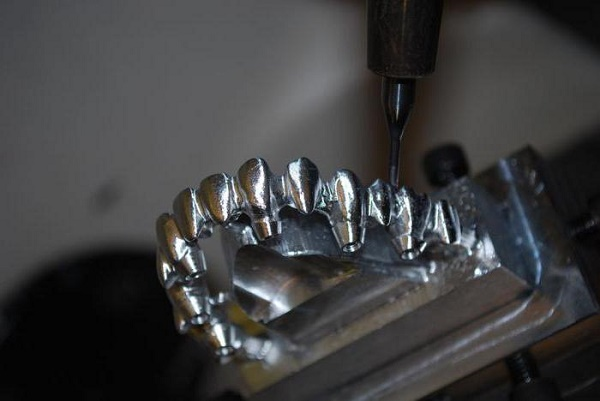 этапы изготовления металлопластиковых коронок