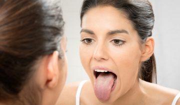 стоматит: как его лечить в домашних условиях быстро и эффективно