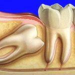 нужно ли удалять ретинированный зуб мудрости