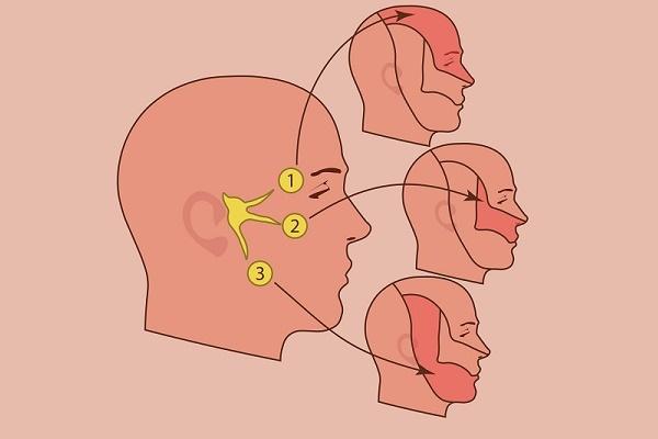 каким бывает воспаление тройничного нерва, фото