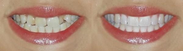 можно ли исправить прикус с помощью композитной реставрации зубов