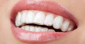 как можно выровнять зубы без бректеов в домашних условиях