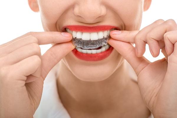 показания к применению ортодонтических трейнеров