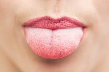 почему у взрослых и детей бывает белый налет на языке
