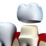 разновидности коронок на зубы, какие самые лучшие