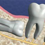 что говорят пациенты об удалении ретинированного зуба мудрости