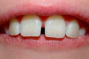 беспокоит ли ребенка щель между зубами