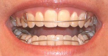 сколько по времени нужно носить ретейнеры после брекетов, зачем их ставят